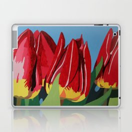 Red & Yellow Tulips Laptop & iPad Skin