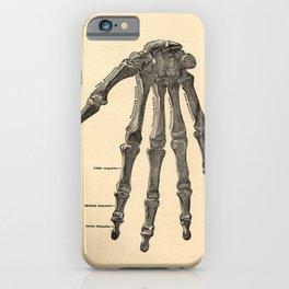 Anatomical Skeleton Hand iPhone Case