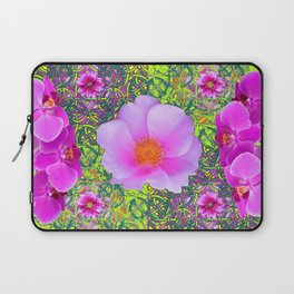 Yellow Pattern Pink Roses & Purple Orchids Abstract Laptop Sleeve