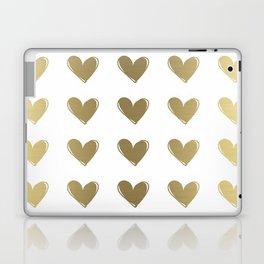 Golden Hearts Laptop & iPad Skin