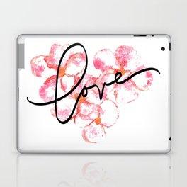 "Plumeria Love - A Romantic way to say, ""I Love You"" Laptop & iPad Skin"