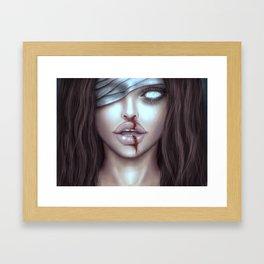 Bleeding Inside Framed Art Print