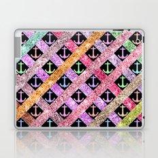 Girly Colorful Glitter Nautical Anchors Stripes Laptop & iPad Skin