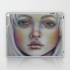 These Vibrant Scars  Laptop & iPad Skin