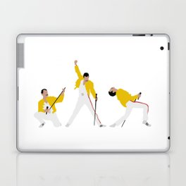 Another One Bites the Dust Laptop & iPad Skin