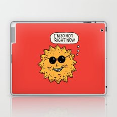 Hot Sun Laptop & iPad Skin