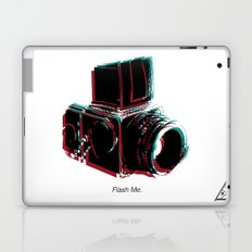 Flash Me Laptop & iPad Skin