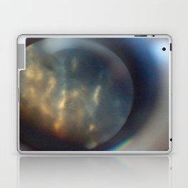 LIDO 1 , SKYPLANET Laptop & iPad Skin