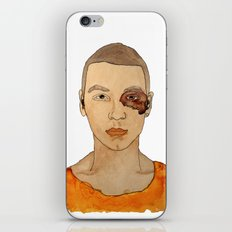 Bruised Thug iPhone Skin
