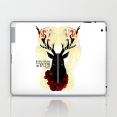 Remember the fallen Laptop & iPad Skin