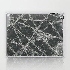 Sparkle Net Black Laptop & iPad Skin