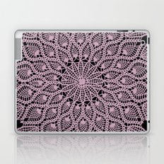 Delicate Pink Laptop & iPad Skin