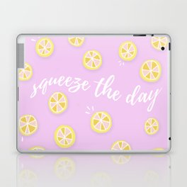 Squeeze The Day | Lemons Laptop & iPad Skin