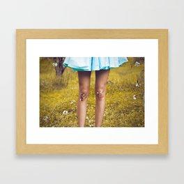 Dirty Knees Framed Art Print
