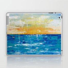 When Your Suntan Fades Laptop & iPad Skin
