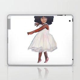 TIPPY TOES Laptop & iPad Skin