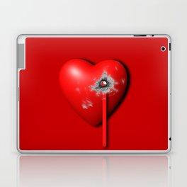 Heart Series Love Bullet Holes Love Valentine Anniversary Birthday Romance Sexy Red Hearts Valentine Laptop & iPad Skin
