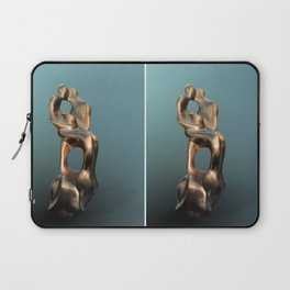 Late Pregnancy by Shimon Drory Laptop Sleeve