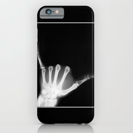 Hang Loose X-Ray iPhone Case