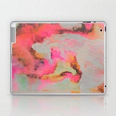 Bright Day Laptop & iPad Skin