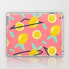 Lemons party #society6 #decor #buyart Laptop & iPad Skin