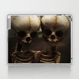 Conjoined Infant Skeletons at Museum Vrolik Laptop & iPad Skin