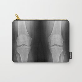 Knee x-ray Carry-All Pouch