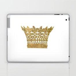 Crown Laptop & iPad Skin