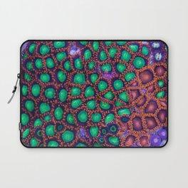 Zoanthus Corals Mix Laptop Sleeve
