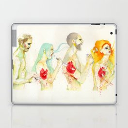 Why don't you love me? Laptop & iPad Skin
