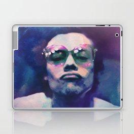 KISSY Laptop & iPad Skin