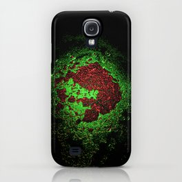 Blood iPhone Case