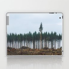 individualize  Laptop & iPad Skin