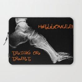 skeleton foot for halloween - scarry,candy, orange,black, trick or treat, fun, jack o lantern, bones Laptop Sleeve