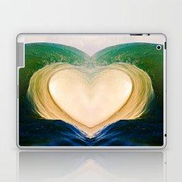 Aloha Barrel 9/6/15 Laptop & iPad Skin