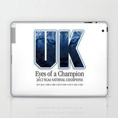 Eyes of a Champion Laptop & iPad Skin