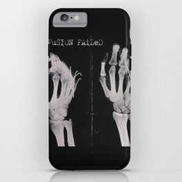 Diffusion Failed iPhone Case