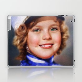 Shirley Temple Laptop & iPad Skin
