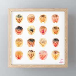 Vulva Diversity – Orange Framed Mini Art Print