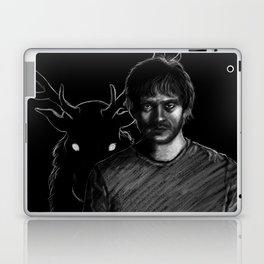 Fading Laptop & iPad Skin