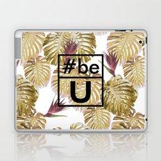 Be U Laptop & iPad Skin