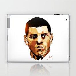 Nick Diaz Laptop & iPad Skin