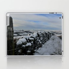 The Pendle Hills Laptop & iPad Skin