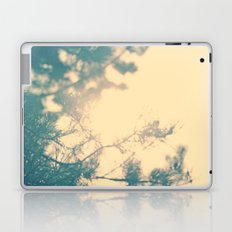 Sunny daze Laptop & iPad Skin