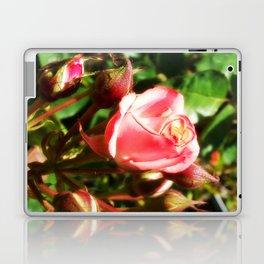 Natural Beauty • Point Defiance Rose Gardens • Tacoma, WA Laptop & iPad Skin