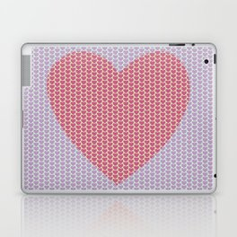 Heart Overload Valentine Issues Laptop & iPad Skin