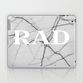 rad Laptop & iPad Skin