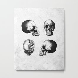 Vintage Medical Engravings of a Human Skull Metal Print