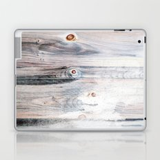 Sunny Cases XXII Laptop & iPad Skin