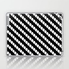 Spinal Stripes Laptop & iPad Skin